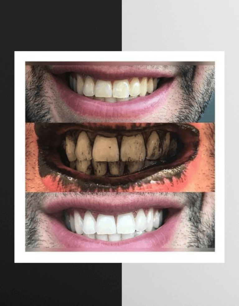 Organic-Teeth-Whitener-Powder-with-Charcoal-Toothbrush-teeth-whitening-charcoal-teeth-whitner-teeth-whitetening-powder 2